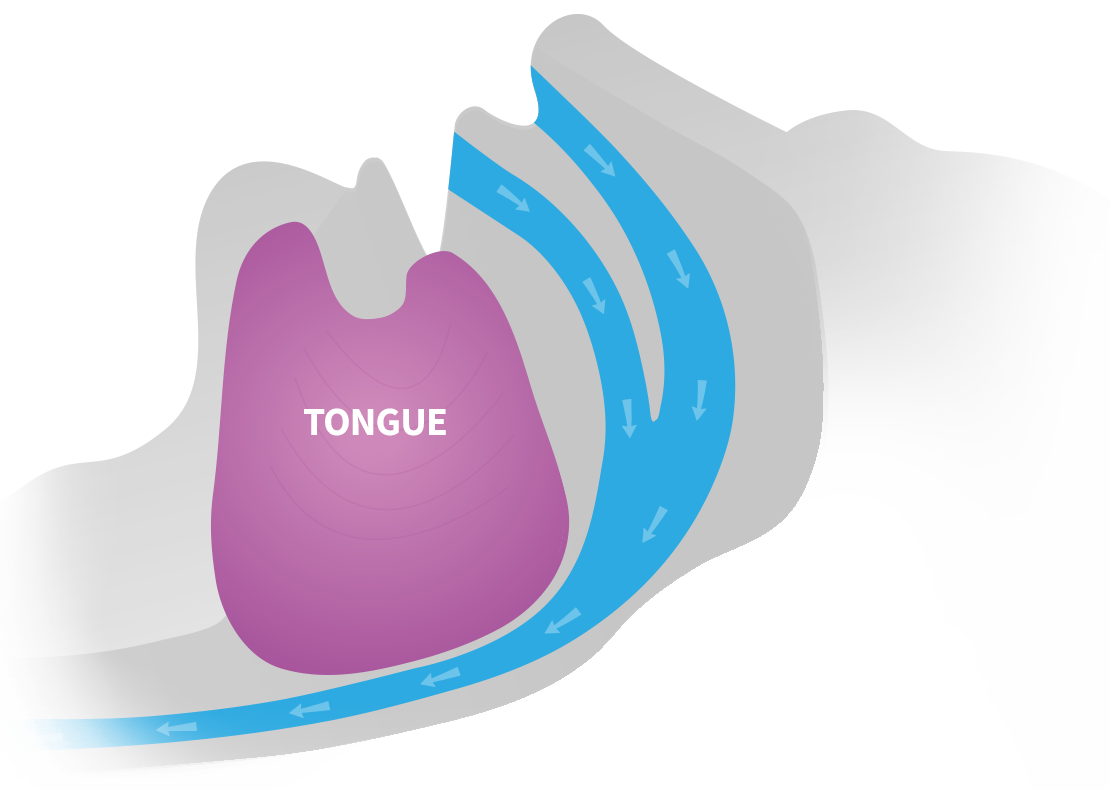 airway open due to strengthened tongue muscle