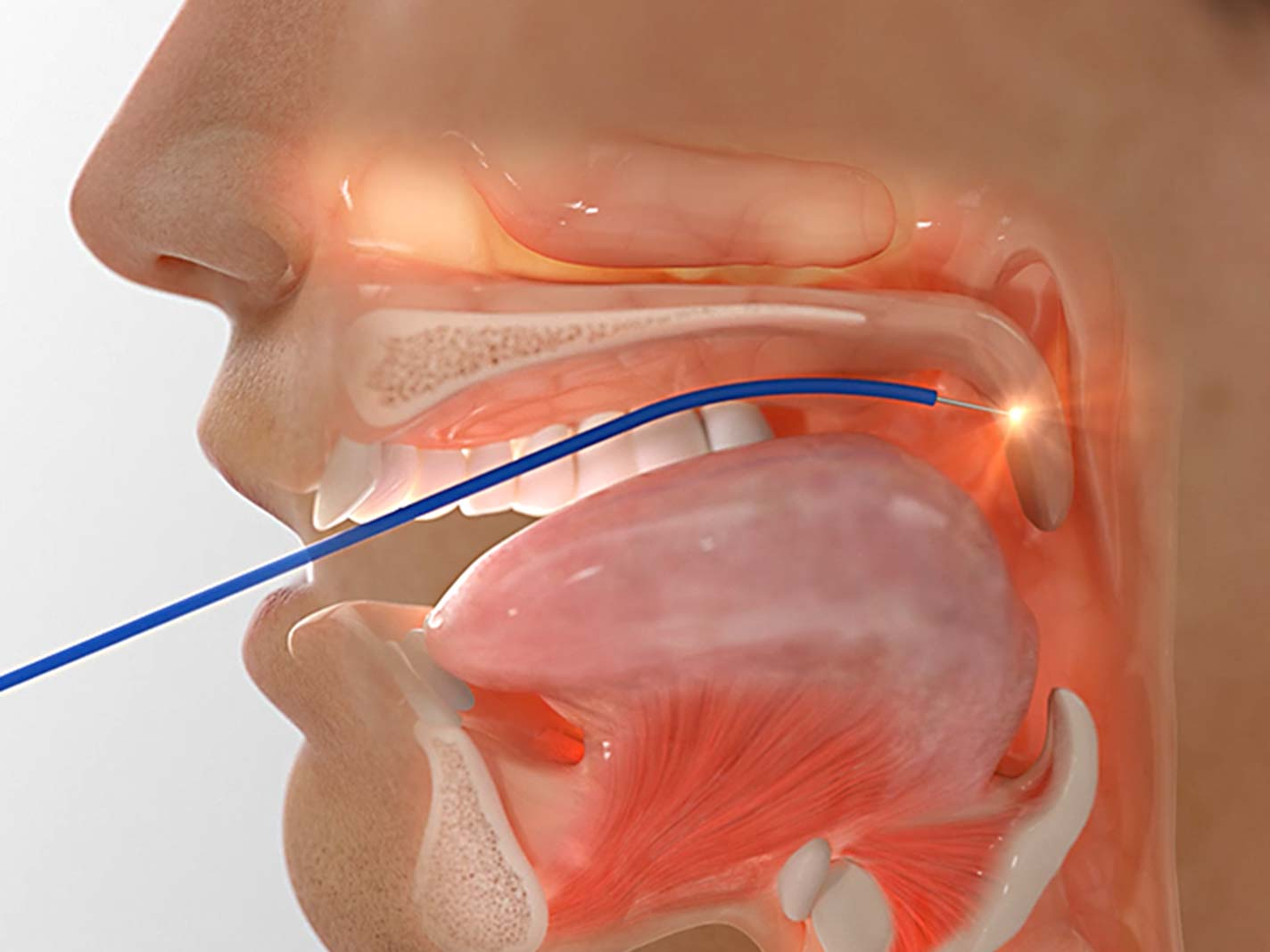 Radioablation is an alterative treatment to eXciteOSA for snoring and for sleep Apnoea
