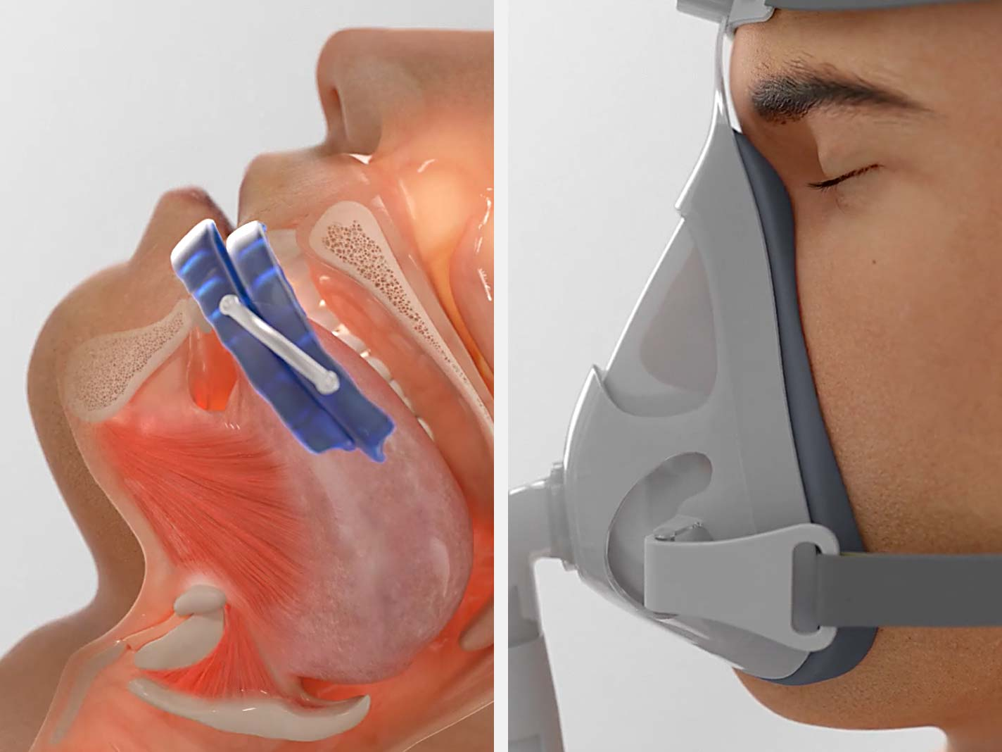 eXciteOSA for Sleep Apnoea is an alternative to CPAP and MAD
