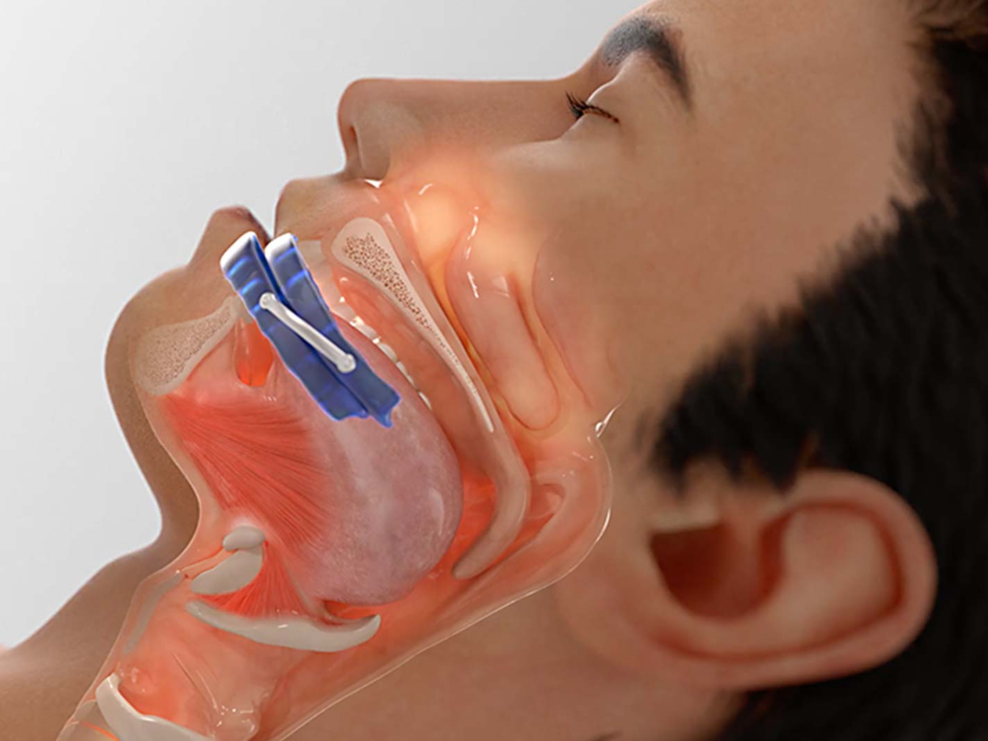 eXciteOSA for Snoring is an alternative to an MAD